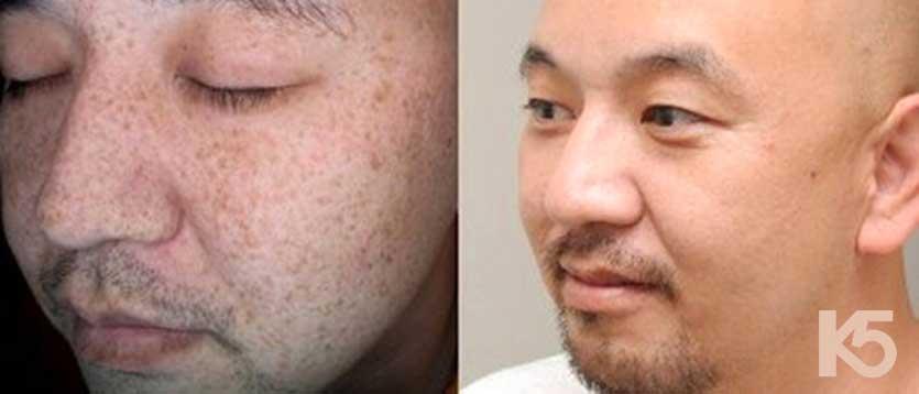 Nguyên nhân gây nám da ở nam giới