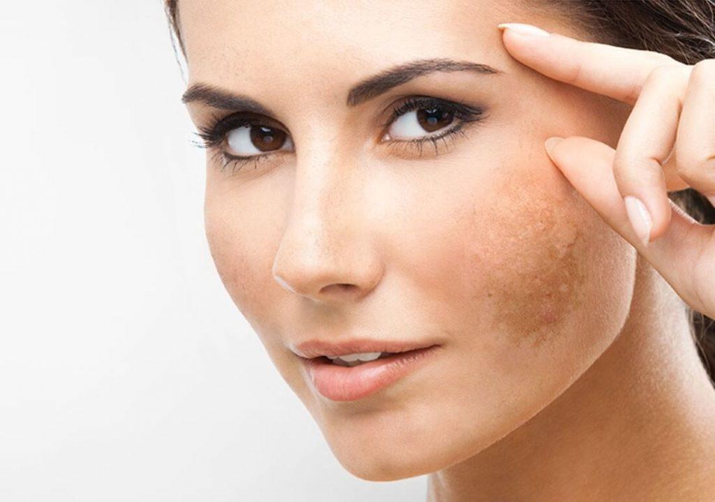 Có rât nhiều nguyên nhân gây nám da ở chị em phụ nữ
