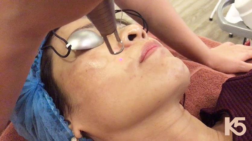 Công nghệ trị nám mesotherapy tại Dimond