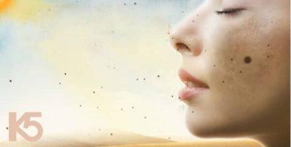 Rối loạn sắc tố da gây nên hiện tượng nám da, sạm da, tàn nhang