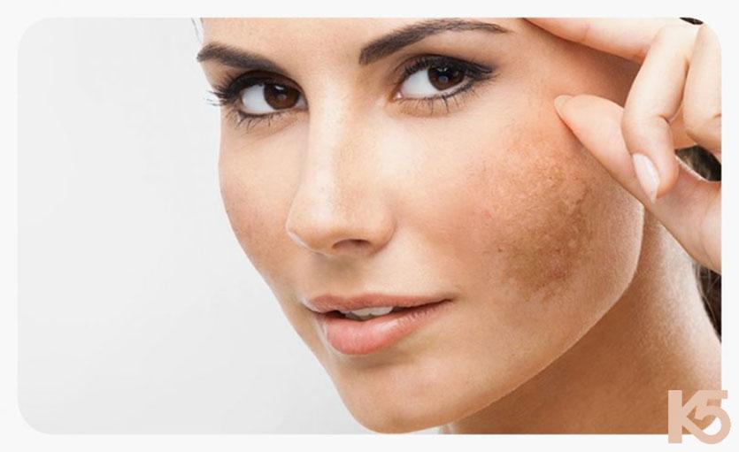 Nám là hiện tượng trên da xuất hiện các đốm có màu nâu