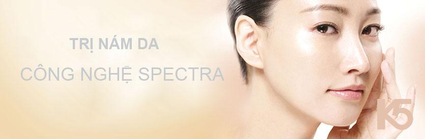 Trị nám bằng công nghệ Spectra