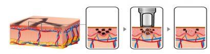 Cơ chế điều trị nám bằng tia laser