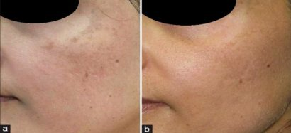 Bệnh nhân trước và sau điều trị bằng tia laser