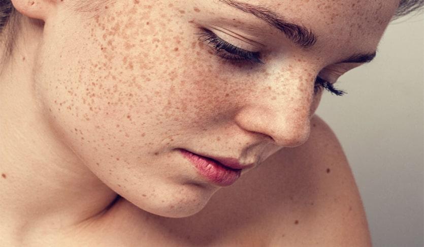 Ảnh minh họa: Những đốm tàn nhang sẫm màu và lan rộng trên khuôn mặt khiến chị An vô cùng tự ti