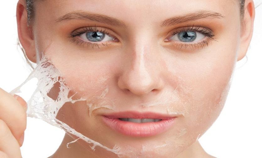 Điều trị đốm nâu với peel da