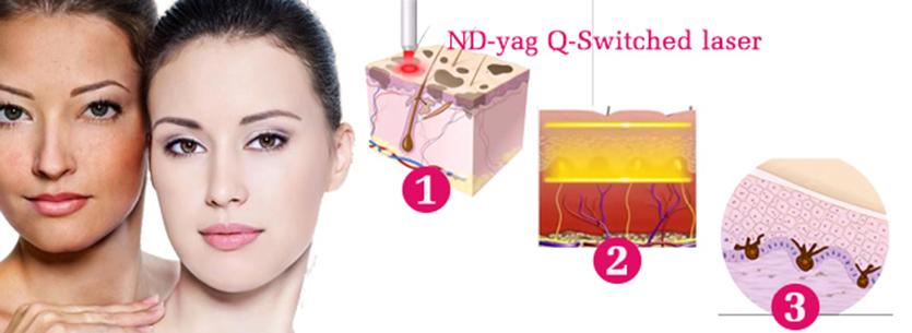 điều trị nám da bằng laser YAG Q - switched tại BV 108