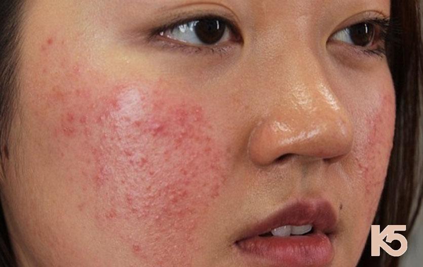 Làn da bị mụn tuyệt đối không được sử dụng phương pháp lăn kim