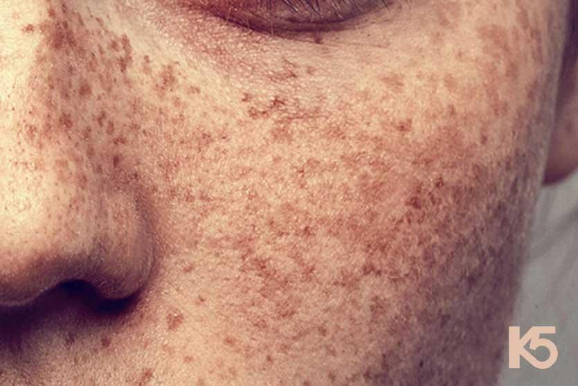 Có nhiều nguyên nhân gây nên nám da ở nam giới