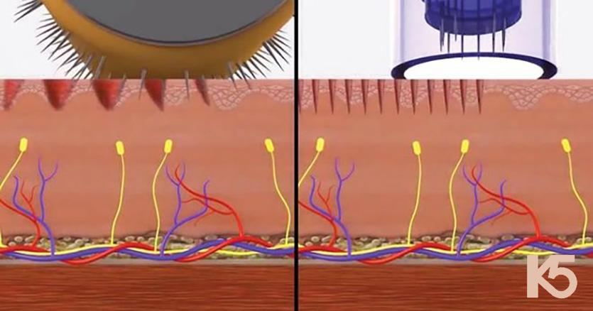 Tác động khác nhau lăn kim theo chiều thẳng đứng và nghiêng còn phi kim tác động theo chiều thẳng đứng