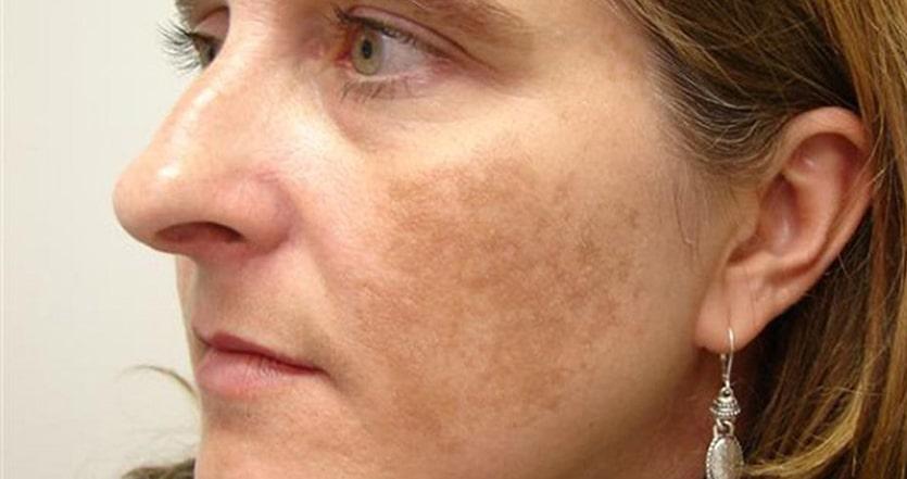 Nám da là một trong những biểu hiện của tăng sắc tố da