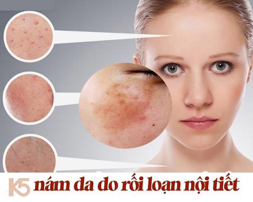 Rối loạn nội tiết tố gây nám da