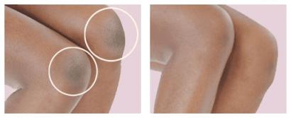 Da không đều màu xuất hiện ở chân