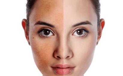 Da không đều màu xuất hiện ở làn da khô
