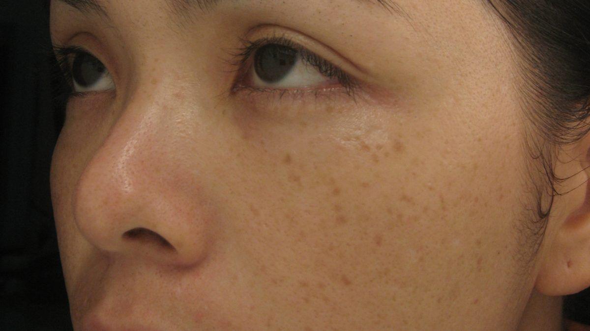 Đốm nâu trên mặt