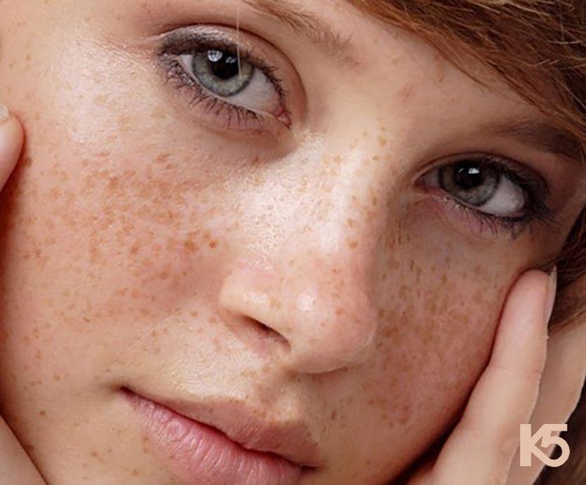 Nám sạm da vùng da mặt