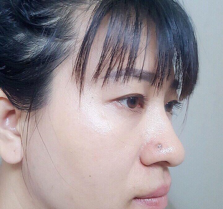 Da mặt mị màng trắng sáng sau sử dụng K5 Lipogel