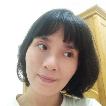 Da mặt chị Thúy sau 6 tuần dùng K5: vết bớt đã mờ đi 80%, da sáng mịn hẳn lên