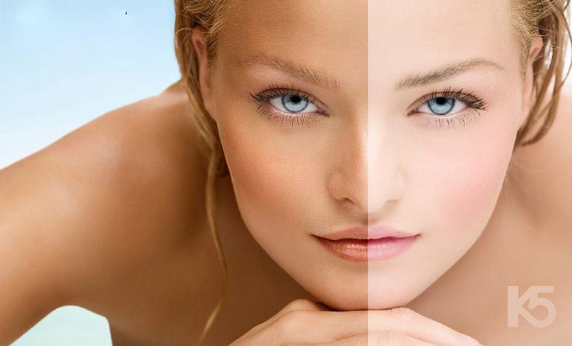 Làn da xỉn màu là một trong những biểu hiện nám da
