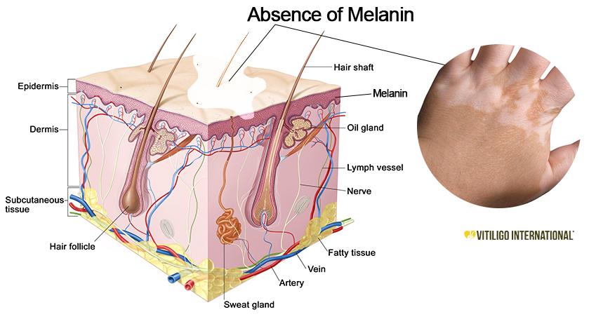 Sắc tố melanin quyết định màu da con người