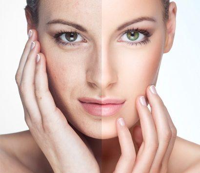 Sạm da là một trong những biểu hiện rối loạn sắc tố
