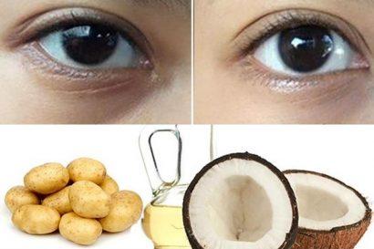 Dầu dừa kết hợp với khoai tây