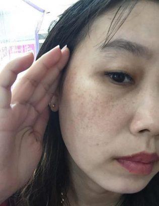 Làn da xỉn màu với các đốm nám khiến chị Thanh rất tự ti, ngại giao tiếp