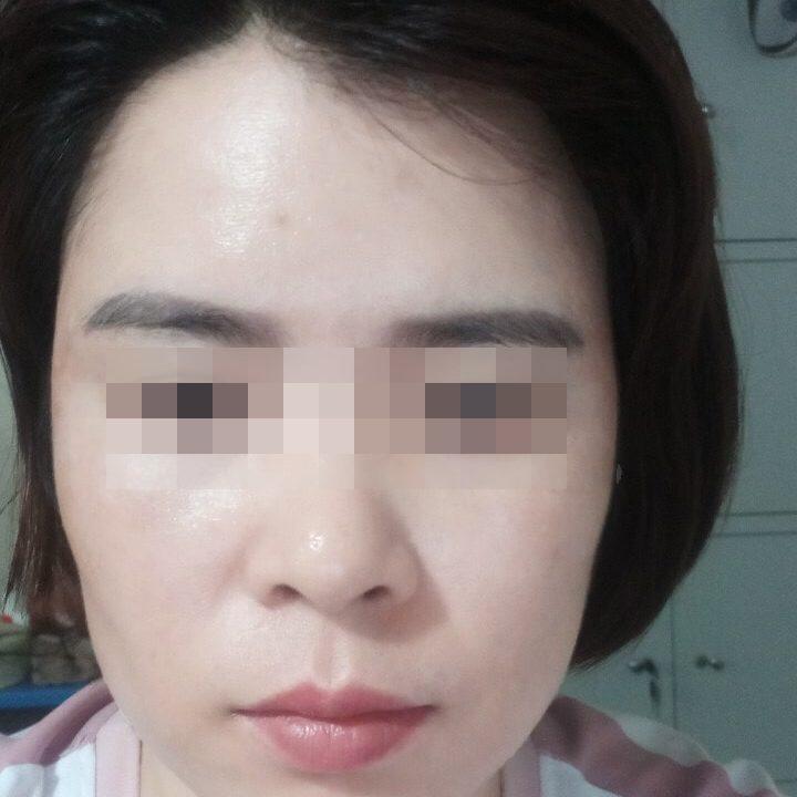 Sau 2 tháng sử dụng K5, chị Huyền tự tin khoe làn da trắng mịn, nám gần như không còn, da đều màu hơn