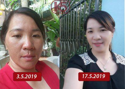Chị Xuân (0986421182) sau 2 giai đoạn K5, kết quả là