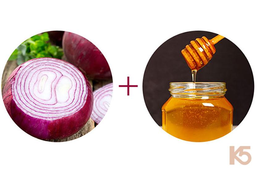 Hành tây và mật ong trị nám