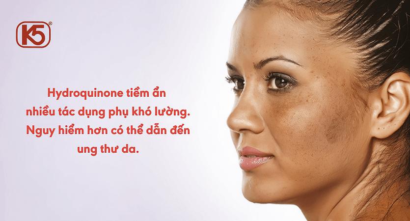 Hydoquinone-tiem-an-nhieu-tac-dung-phu-kho-luong
